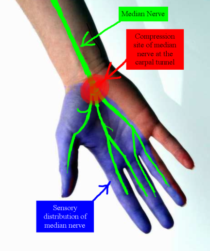 "The median nerve provides feeling and movement to the ""thumb side"" of the hand (the palm, thumb, index finger, middle finger, and thumb side of the ring finger)."